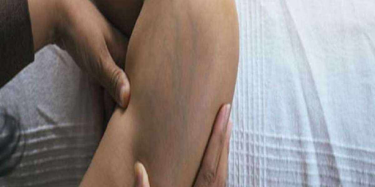Varicose Veins Treatment and Compression Therapy