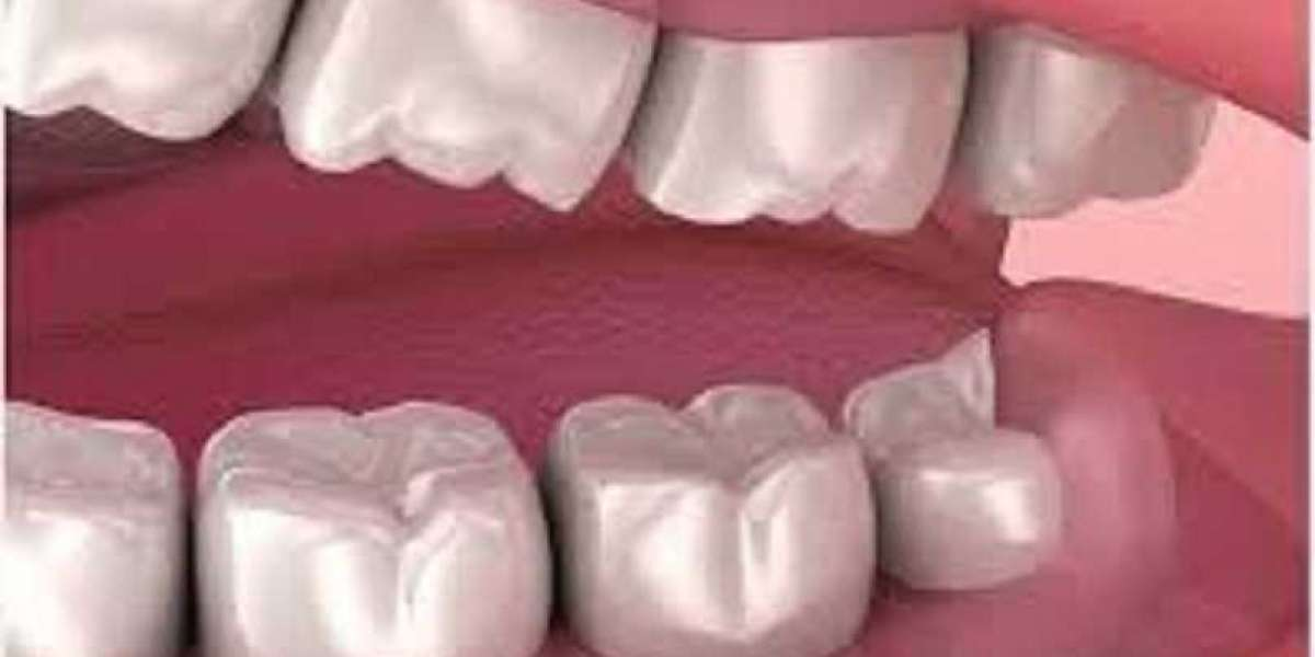 Is Zoom teeth whitening good for your smile?