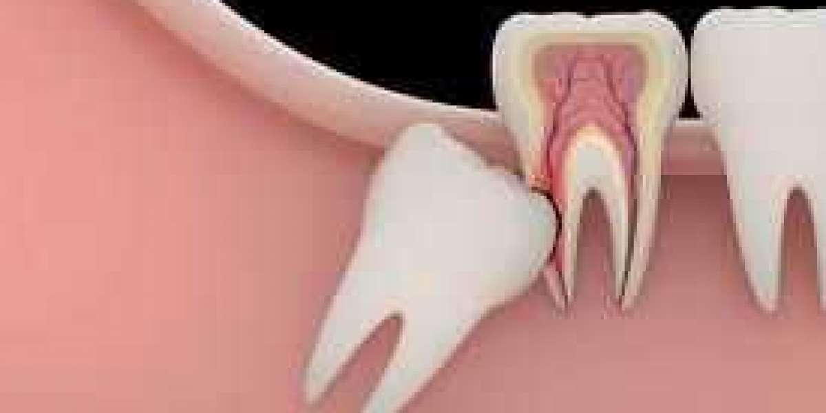 What Is The Cost Of Dental Implants Houston Tx And Other Important Facts?