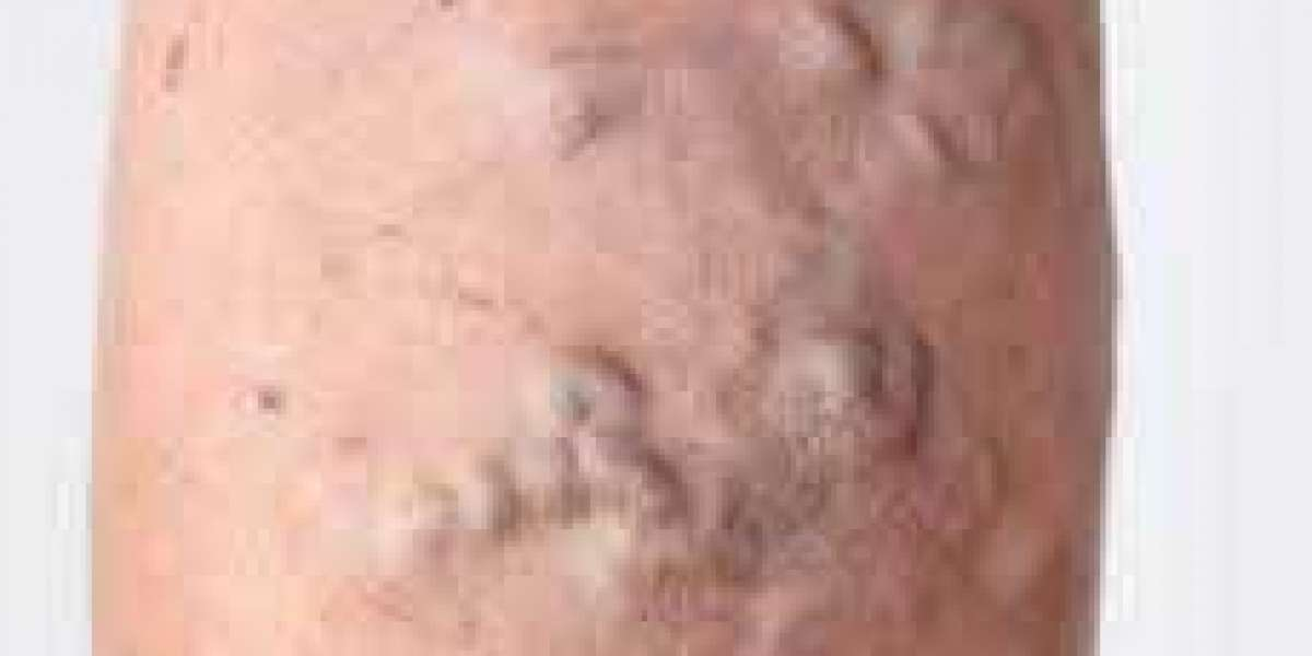 What are the causes, risk factors, and treatment of spider vein treatment?