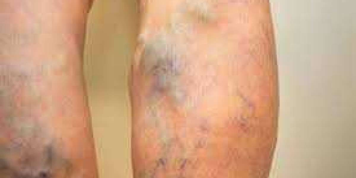 Is Laser Vein Treatment Better Than Home Remedy Treatments?