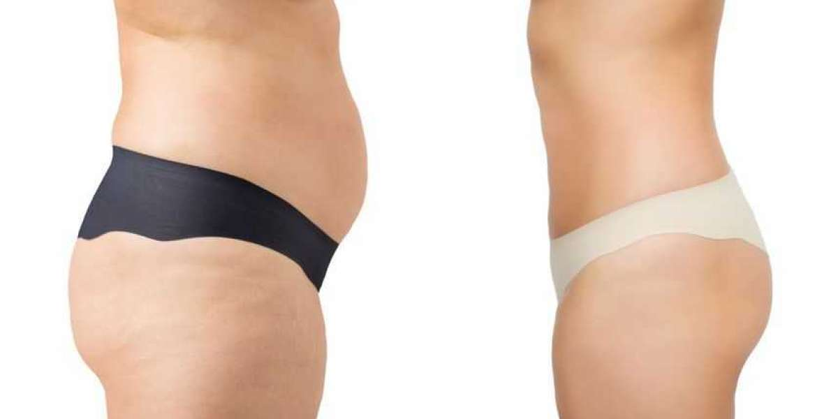 What Do You Need To Know About Tummy Tuck?