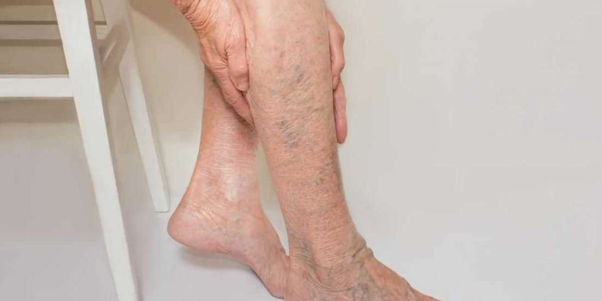 What Are The Common Vein Problems in Legs and How to Treat Them?