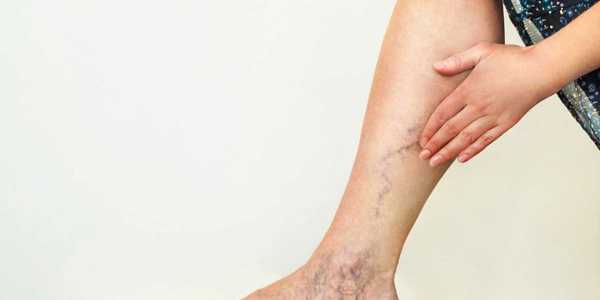 Sclerotherapy: How To Remove Spider Veins Effectively?