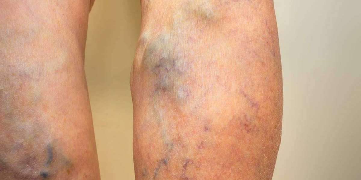 What Can Be The Best Method To Treat Spider veins?