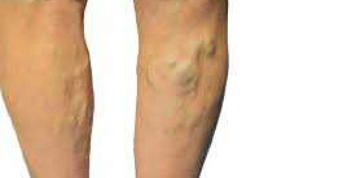 How Intense Pulsed Light Therapy Helps In Treating Veins?