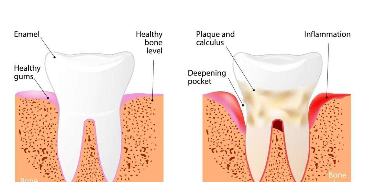 Top Rated Restorative Dentistry Procedures: