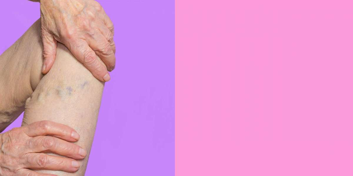 What is Best Vein Treatment- Surgery or Laser Treatment?